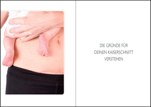 Natürliche Geburt nach Kaiserschnitt (Innenansicht)
